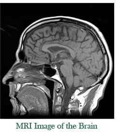 example of a brain MRI image