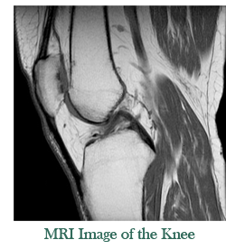 example of a knee MRI image